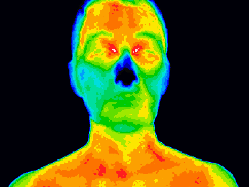 Face and neck thermography